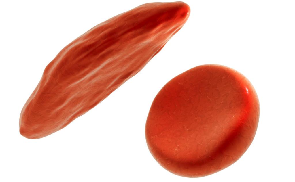 鎌状赤血球:ドナーのいらない血液疾患治療